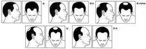 les differents stades de calvitie