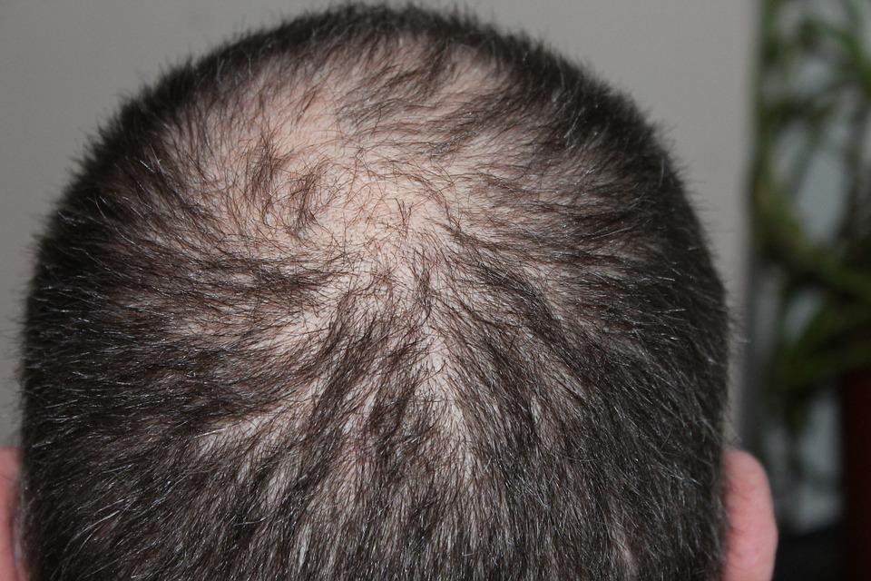 causes de la perte de cheveux