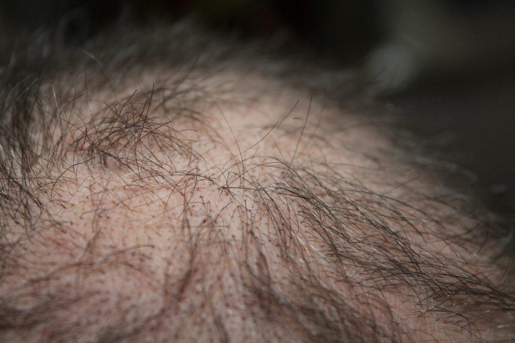 alopécie androgénique