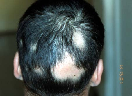 perte de cheveux par plaque ronde