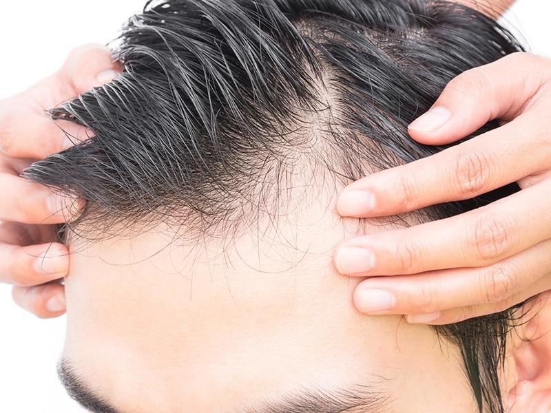 comment corriger une greffe de cheveux ratée